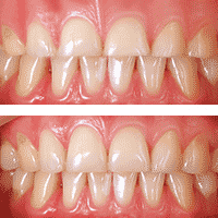 Crown Lengthening, Gum Recontouring