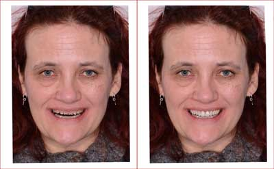 We can show you a Smile Makeover image in minutes
