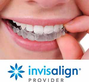 Invisalign Promotions